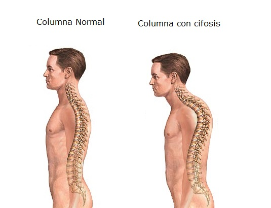 Columna normal vs Cifosis
