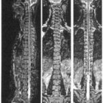 Medical diagnosis of Spondylosis