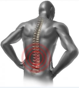 The symptoms of spondylosis is pain in the back
