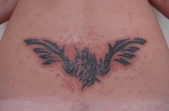 Problemas dérmicos por tatuajes